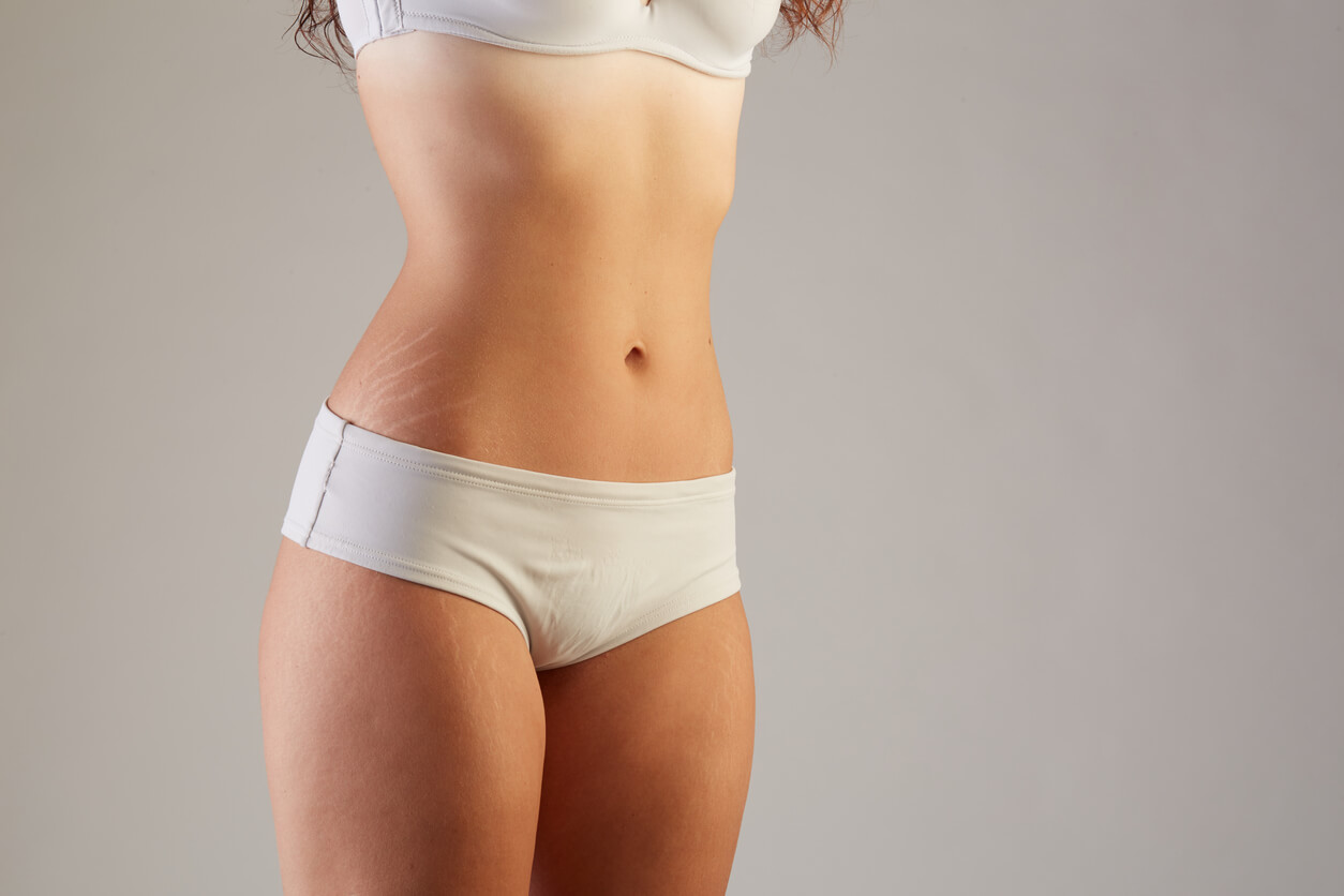 What's the Color of Your Stretch Mark and What Does it Mean?