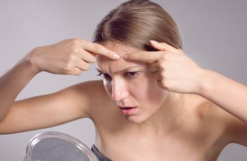 What Causes Adult Acne and How to Fight It