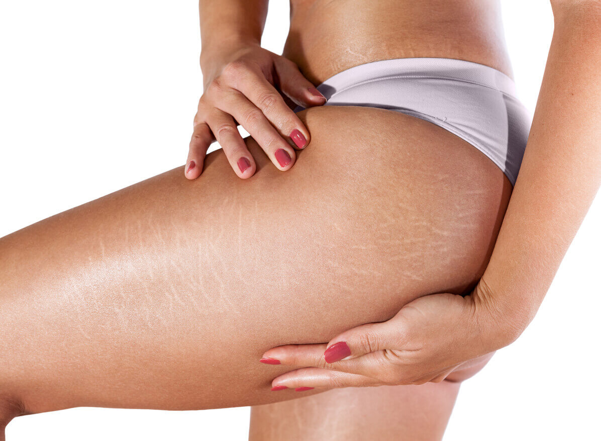 Are You Making Your Cellulite Worse?