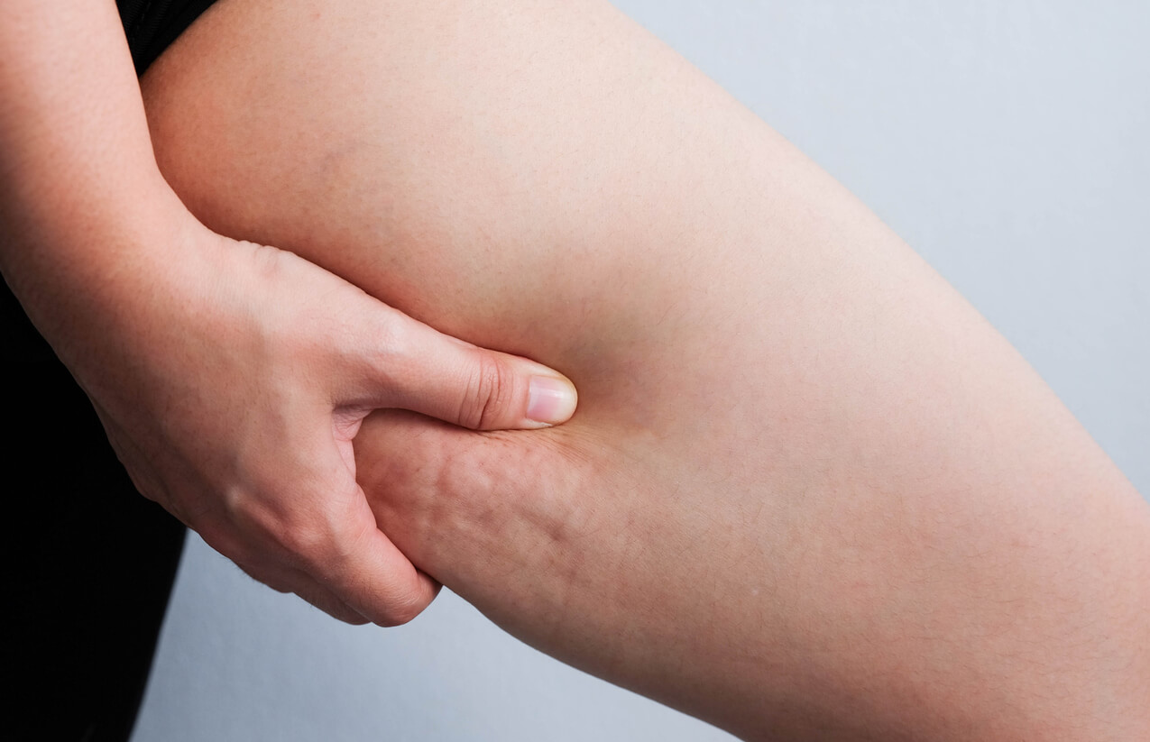 Cellulite Removal – What Works and What Doesn't