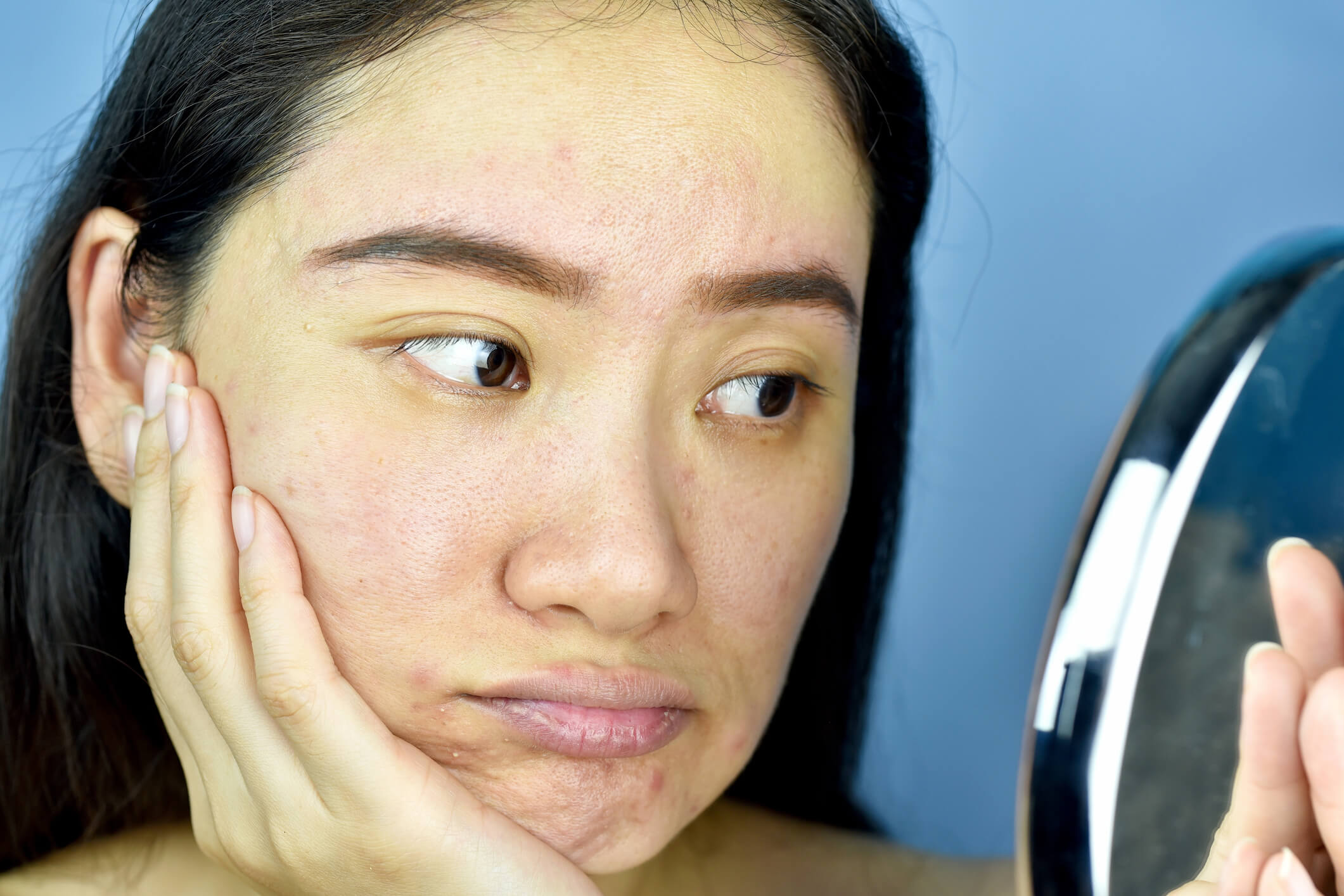 Clogged Pores – Why It Happens and What You Can Do About It