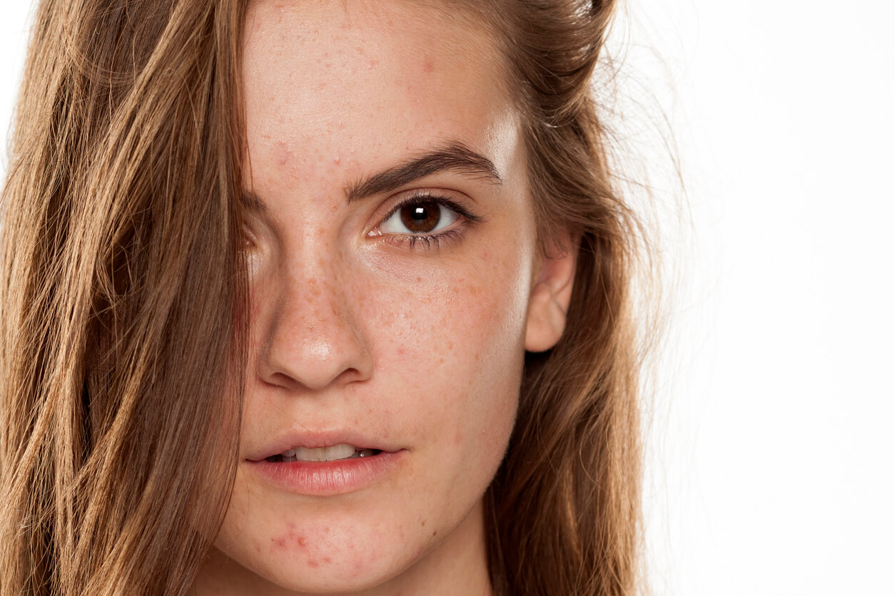 Is There a Cure for Melasma?