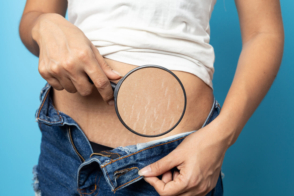 Can You Do Something About Mature Stretch Marks?