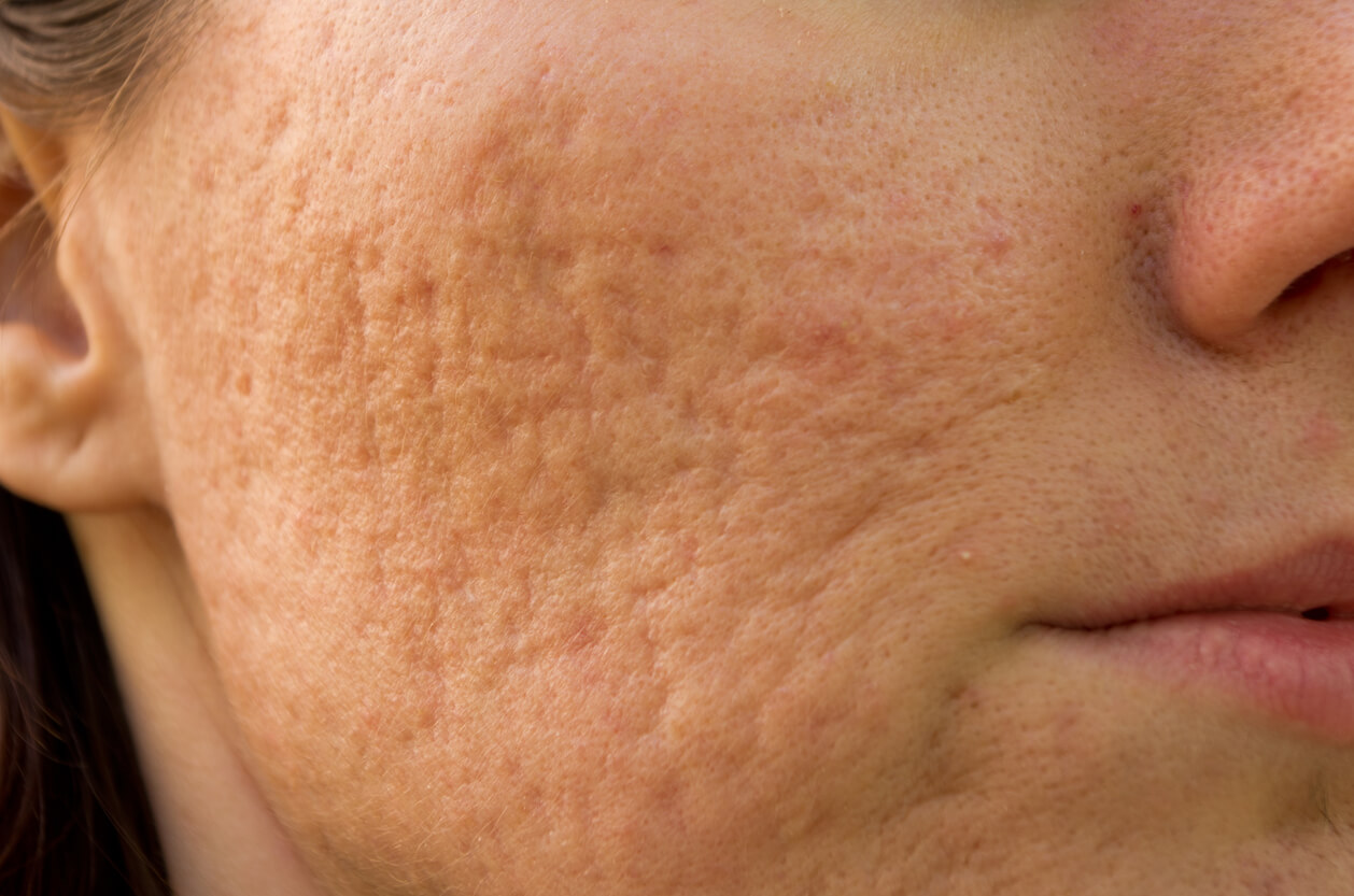 Large Pores – What Are They and How to Minimize Them