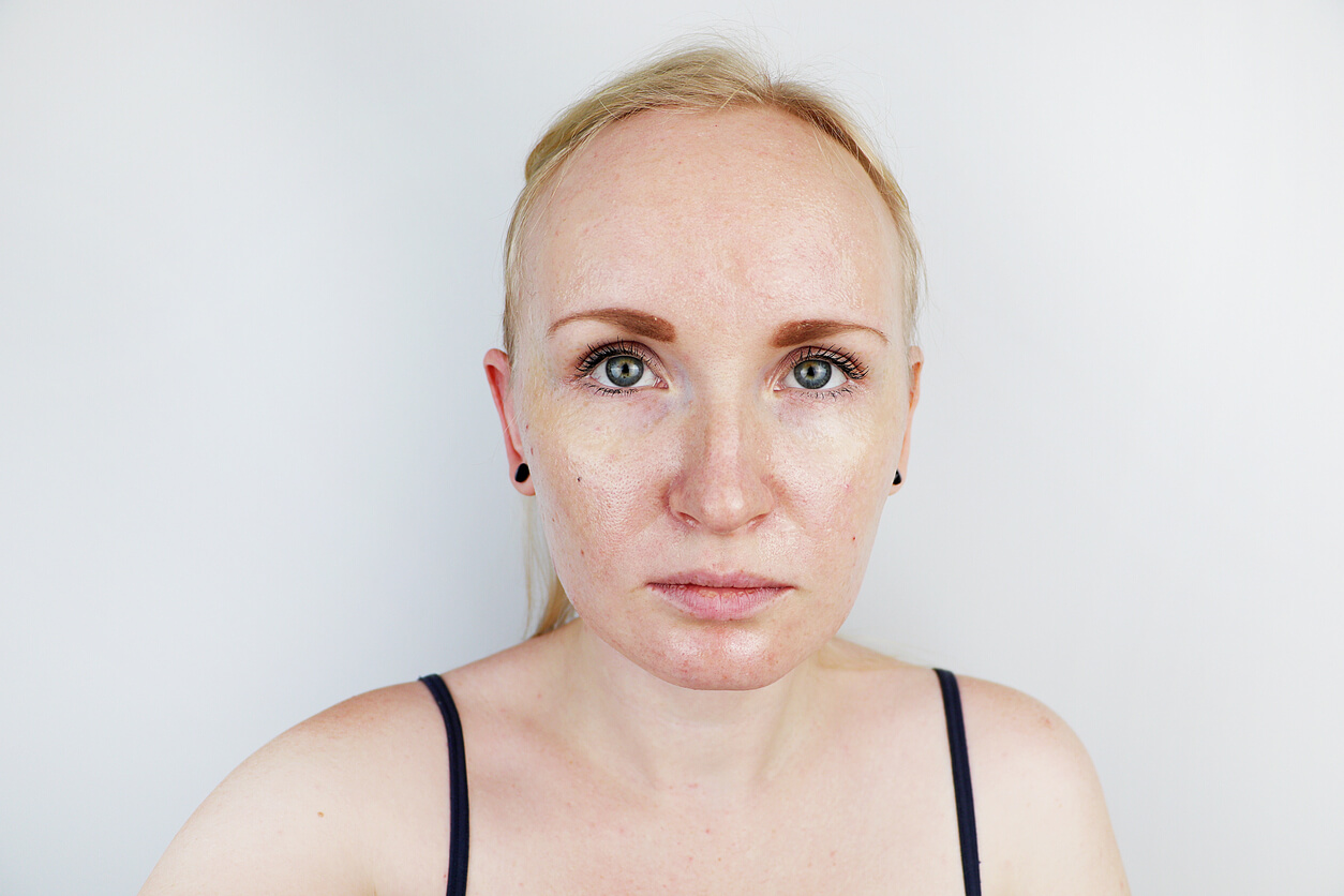 Hyperpigmentation: Does it Go Away on Its Own?