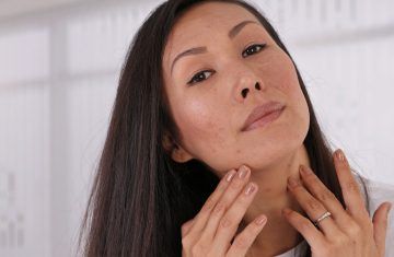 Acne Scars: Is There a Way to Remove Them Completely?