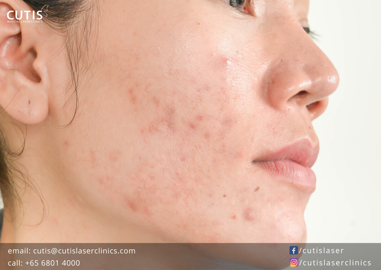 8 Surprising Things That Can Trigger Acne- Cutis Laser Clinics