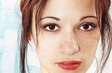 Fading Dark Spots: When OTC Products Aren't Working
