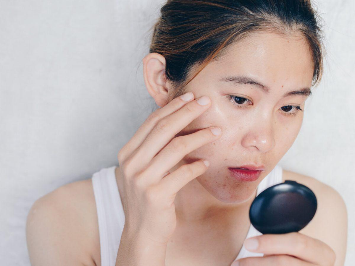 Tips Sederhana Untuk Menghilangkan Bekas Jerawat Yang Dapat Anda Coba Beauty Journal
