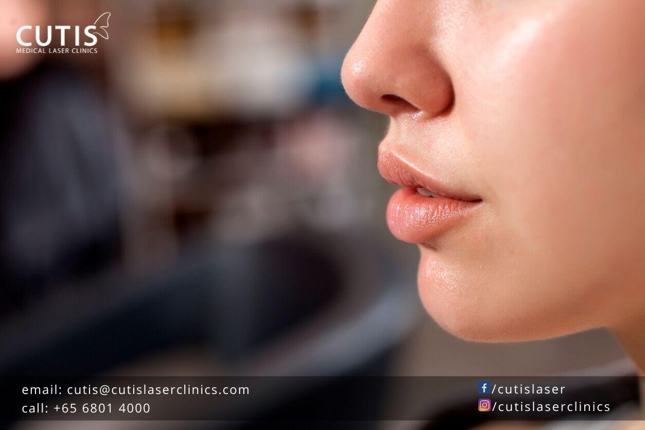 Need-to-Anti-Age-Your-Lips-DrSylvia-SkinCare
