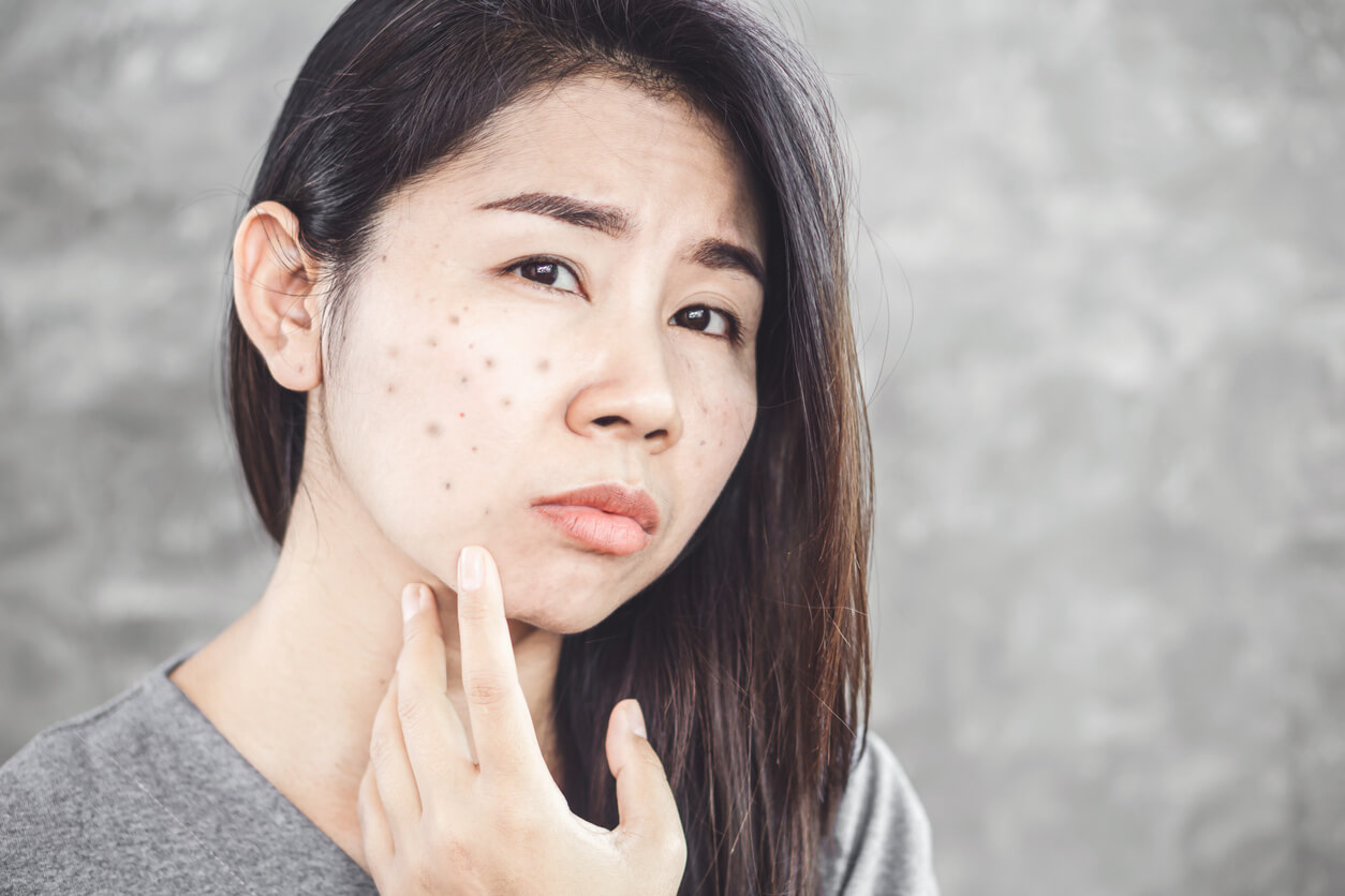 Treating and Preventing Future Dark Spots: Yes You Can!