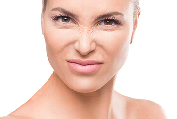 Bunny Lines: What Can You Do About Nose Wrinkles?