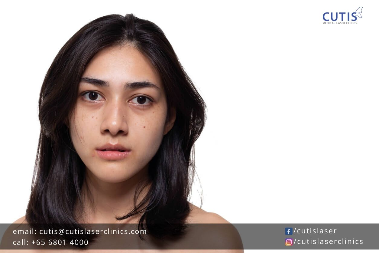 How to Combat Dark Spots for Clear, Even Complexion?