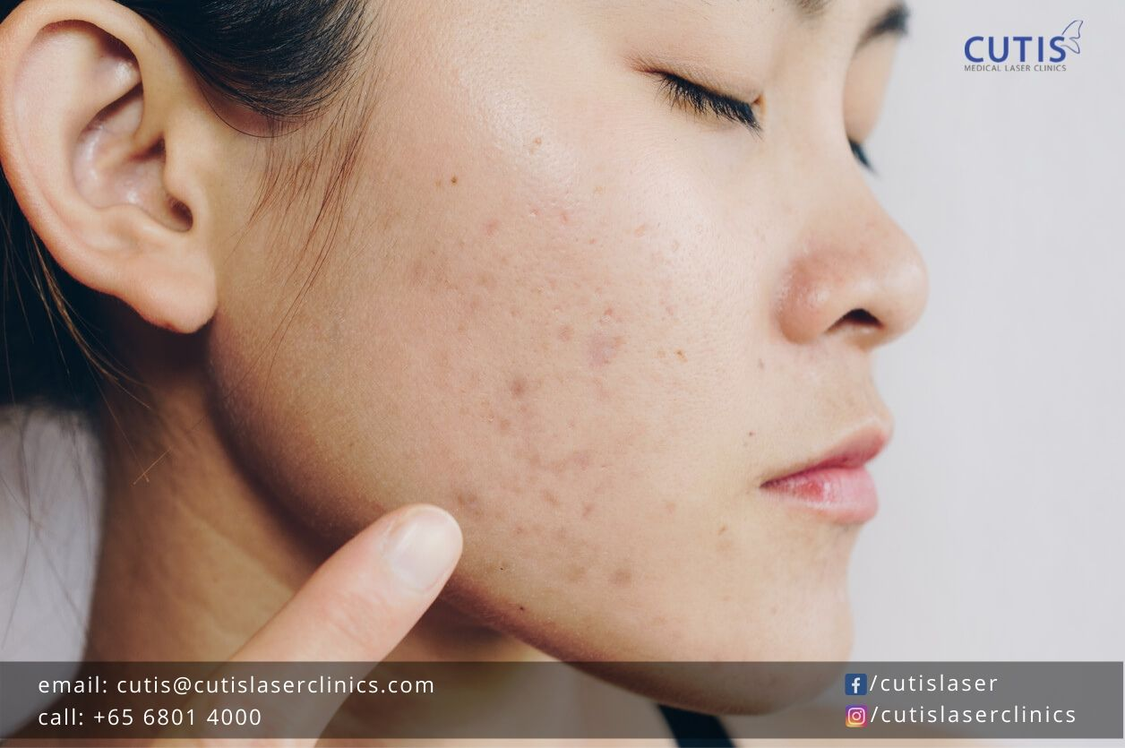 Can You Get Rid of Blackheads?