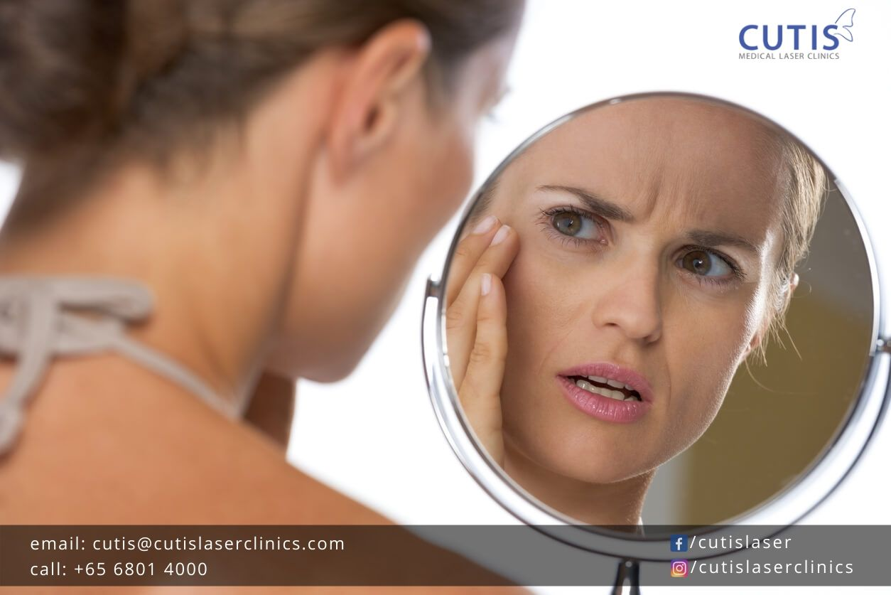 Can You Prevent or Delay Wrinkles?