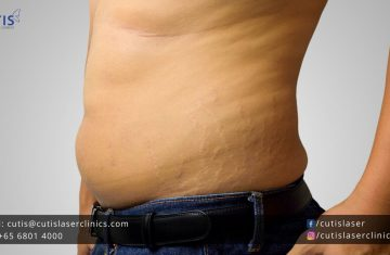 Stretch Marks in Men: Causes and Treatments