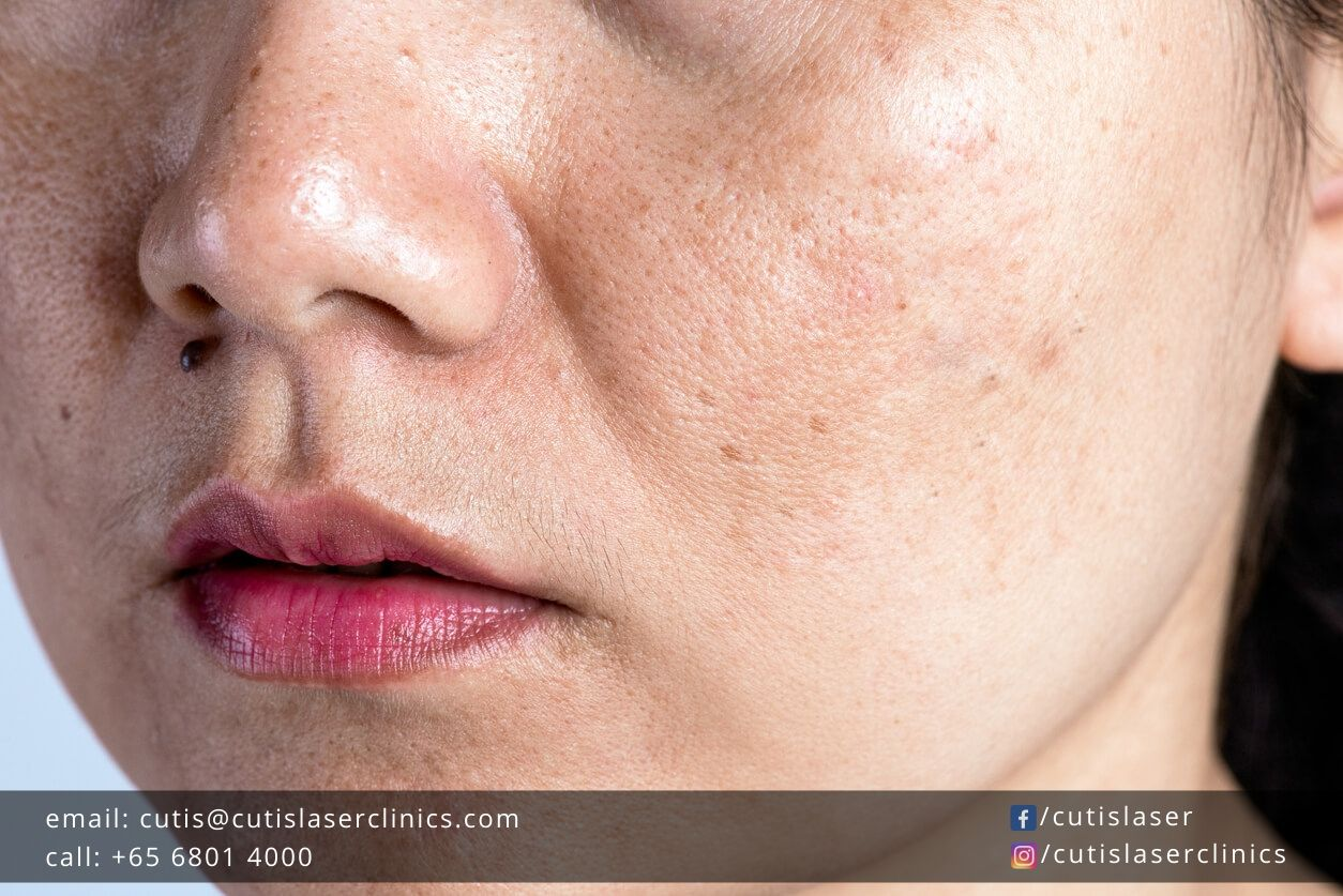 Treat-and-Fade-Your-Pigmentation