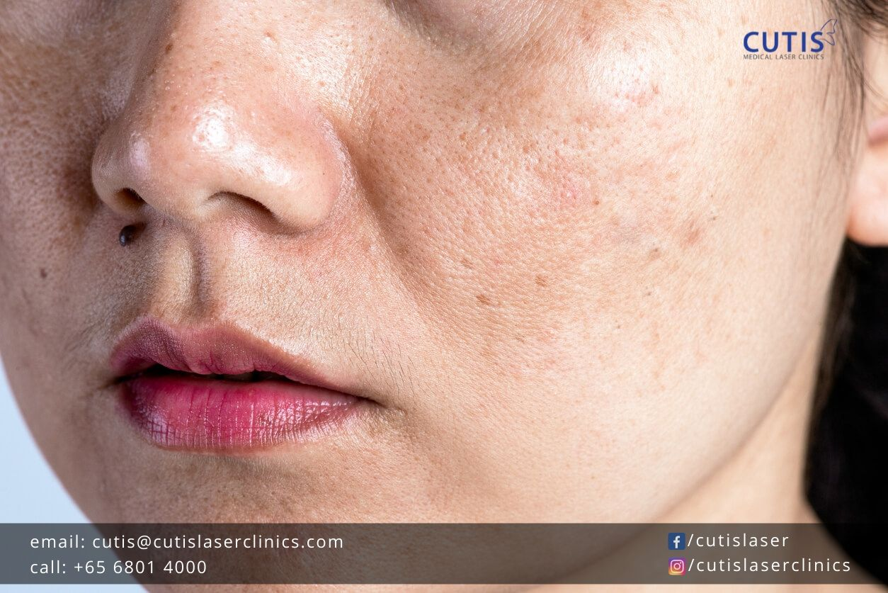 Treat and Fade Your Pigmentation: Ingredients to Look For