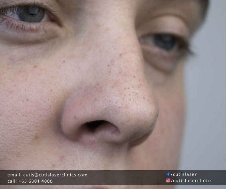 Clean-and-Unclog-Nose-Pores