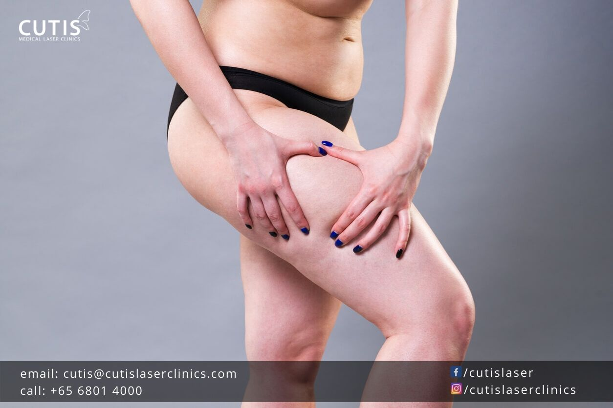 Why Liposuction Won't Get Rid of Your Cellulite?