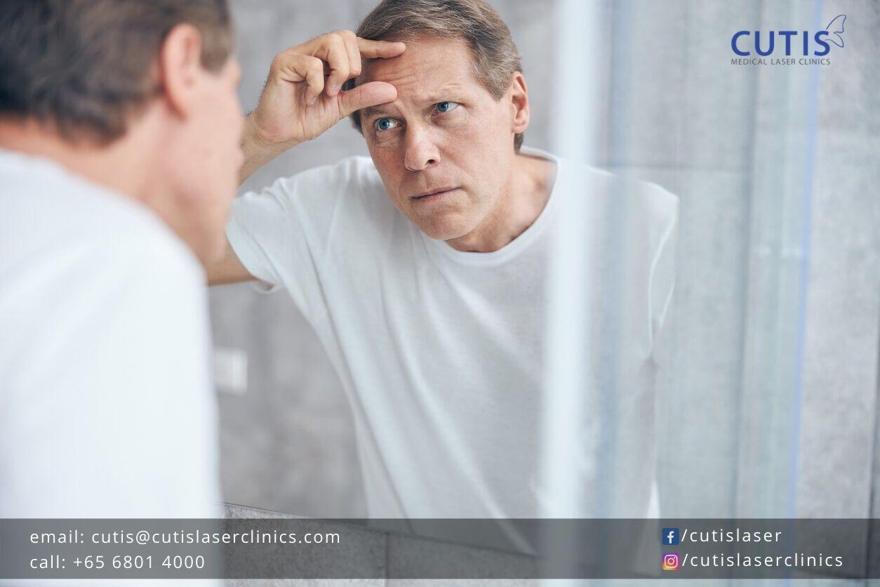 Facial Rejuvenation: Why Men Need it Too?