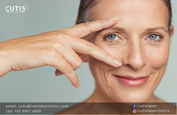 For More Youthful Eyes: Your Nonsurgical Options for Droopy Eyelids