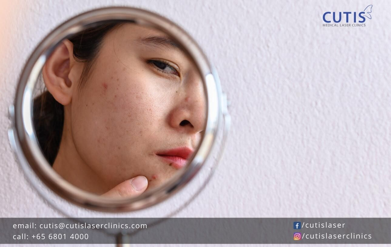 5-Common-Questions-About-Acne-Scars-Answered