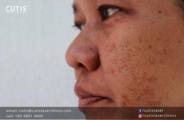 5 Myths About Pigmentation
