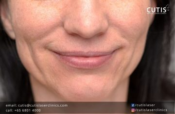 Combat the Signs of Aging in Your Lower Face