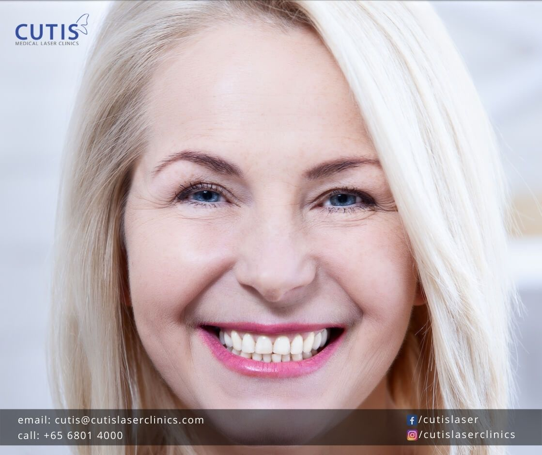 RADIESSE®: What Makes it Different from Other Fillers?