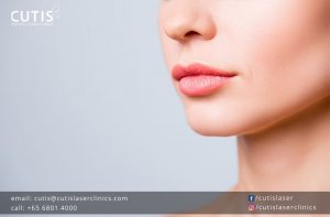 Lip Fillers: Not Just for Thin Lips