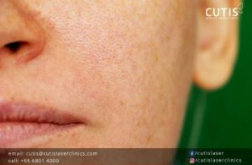 What's the Difference Between Hyperpigmentation and Hypopigmentation?