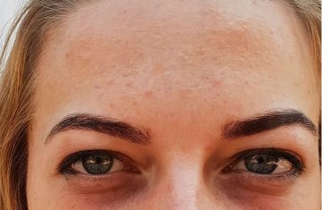 Does Eye Cream Work for Dark Circles?