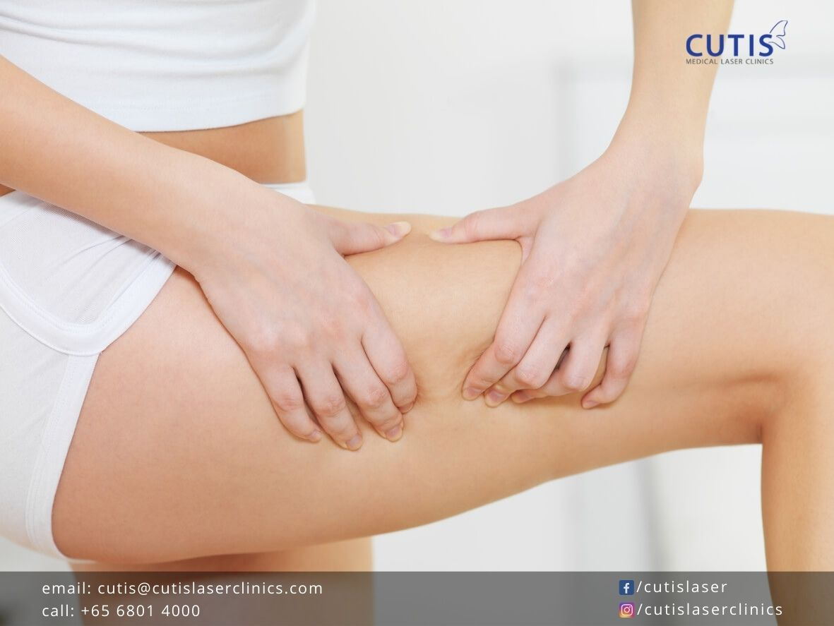 Reduce Cellulite with Exilis Ultra 360 and Acoustic Shockwave Therapy