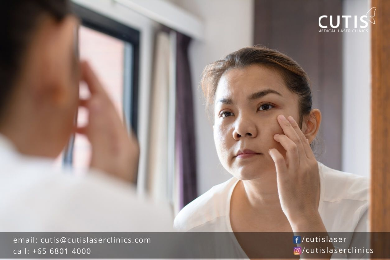 What to Do When You Start Seeing Wrinkles