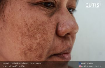 Your Common Questions About Melasma Answered