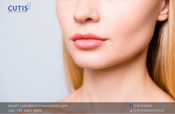 Why Do Lips Look Swollen or Uneven After Fillers?
