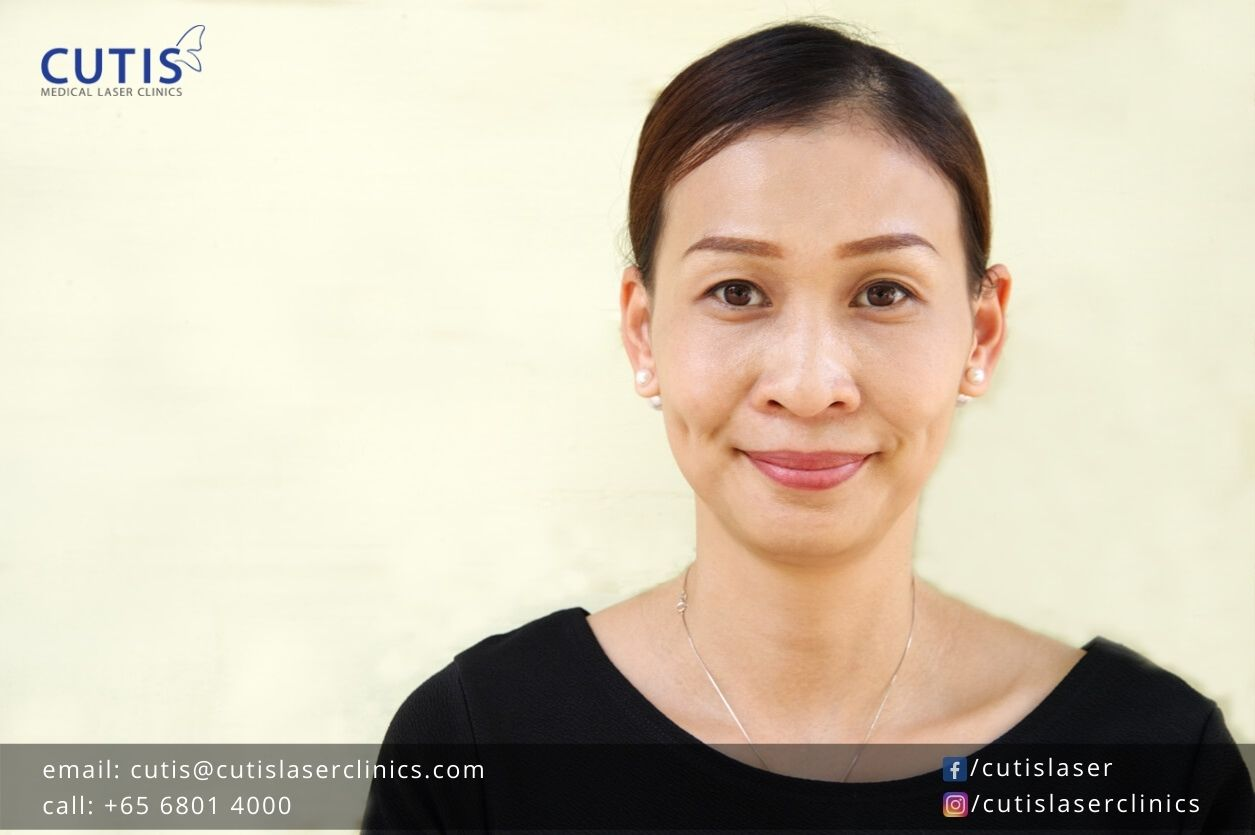 Skin Rejuvenation with Exilis Ultra 360: What Can You Expect?