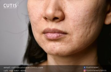 VI Peel Purify: The Chemical Peel for Your Acne-Related Concerns