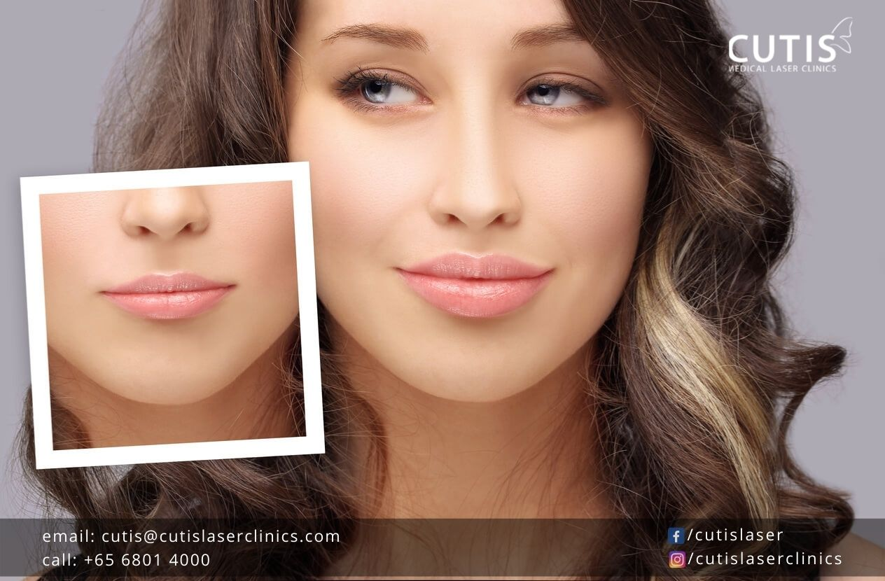 Caring for Your Lips After Dermal Fillers