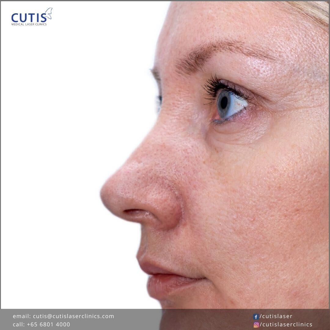 Treat and Improve Skin Imperfections with PicoCare Laser Treatments
