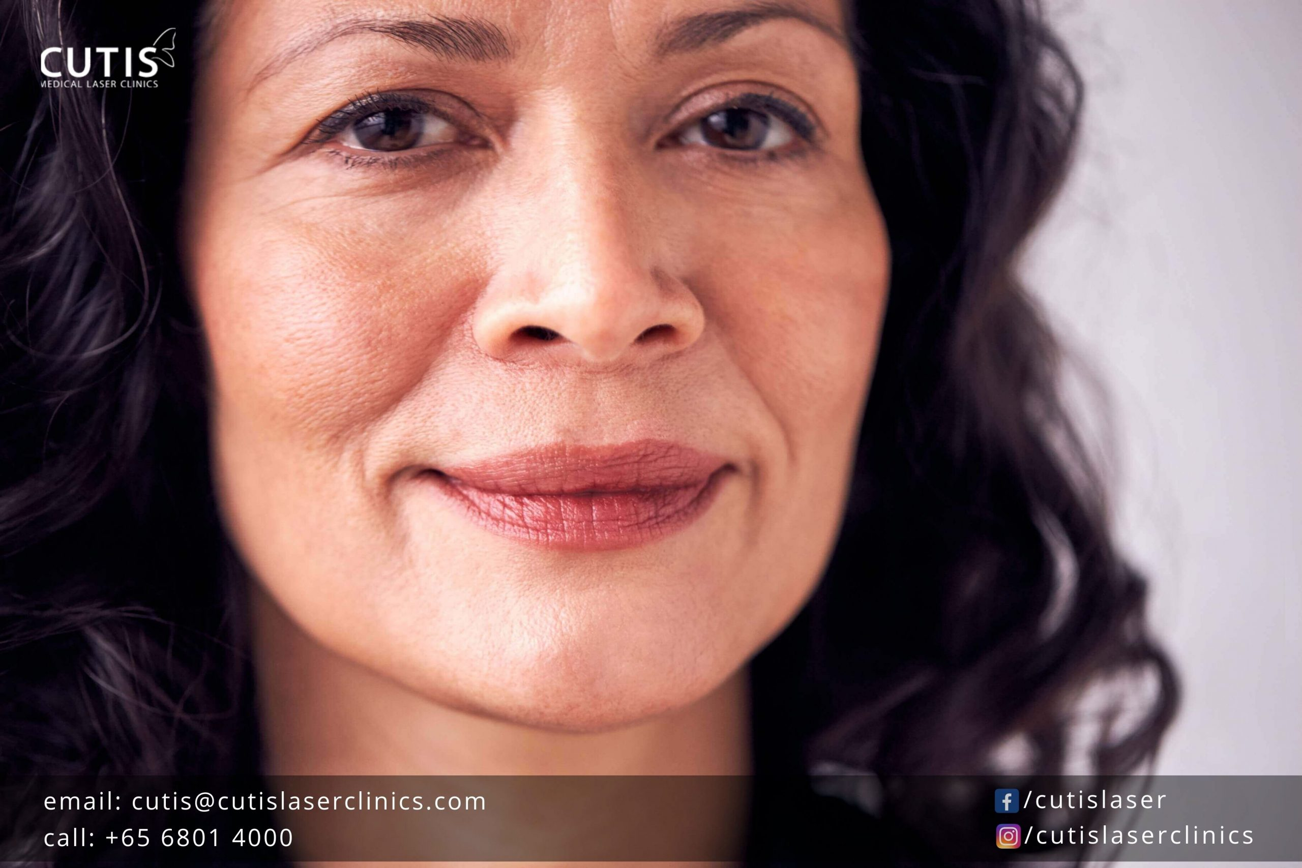 Worried About Jowls? How Titan Skin Tightening Can Help