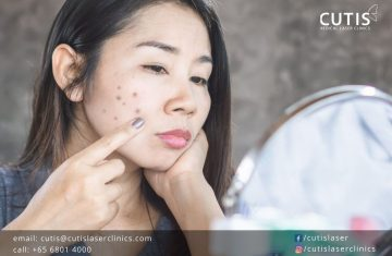 Why Are Your Dark Spots Not Going Away?