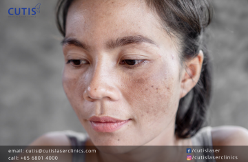 Do You Have Congested Skin?