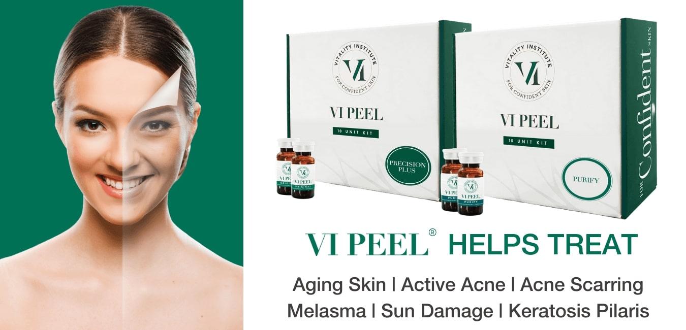 VI Peel Treatment