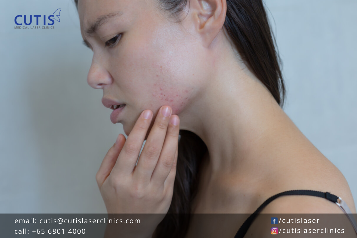 What Causes Sudden Breakouts?