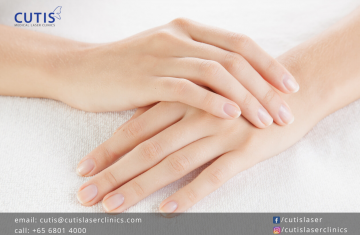 Bothered with Aging Hands? Try RADIESSE®