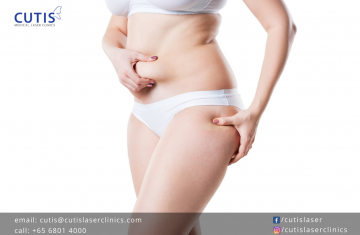 How Vanquish ME Can Reduce Thigh and Abdomen Circumference