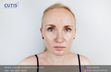 5 Misconceptions About Oily Skin