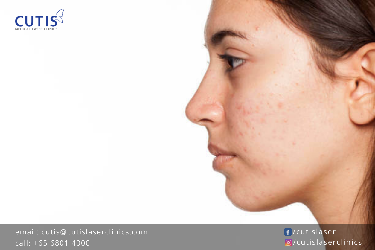 Treating Scars and Pigmentation: PicoCare Lasers vs Traditional Lasers